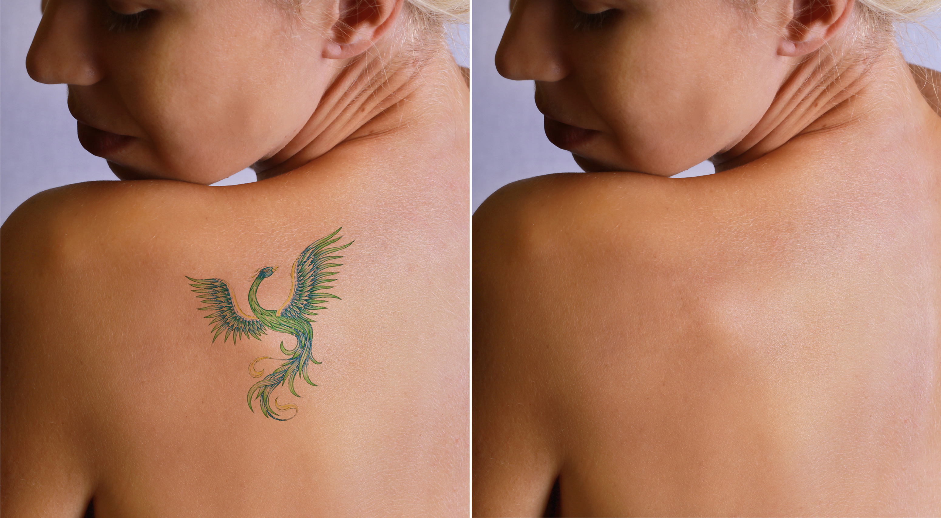Laser tattoo removal befor and after. Beautiful young woman with tattoo on her back